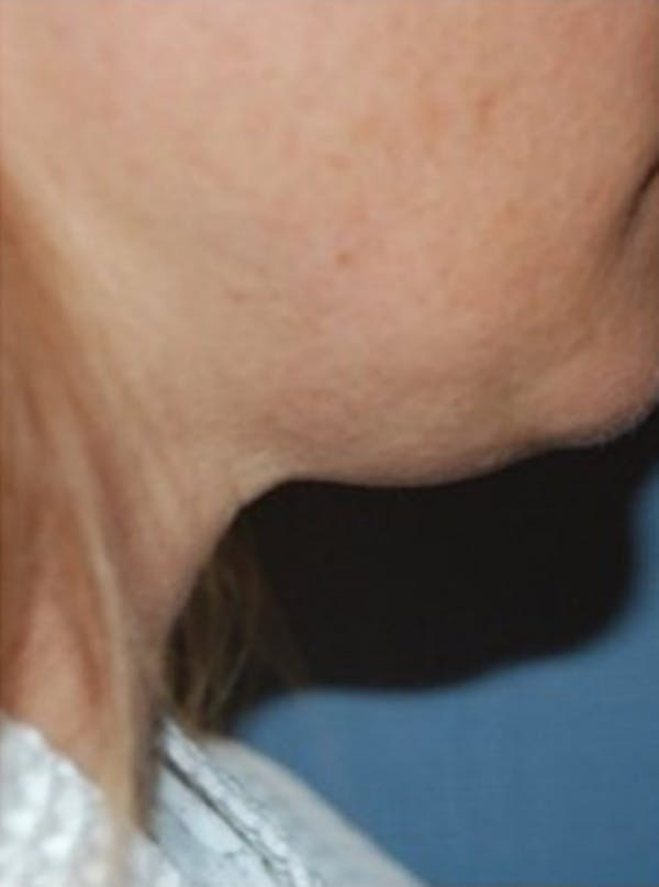 Liposuction Gallery - Patient 13947248 - Image 1