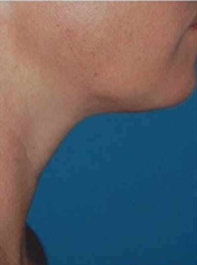 Liposuction Gallery - Patient 13947248 - Image 2