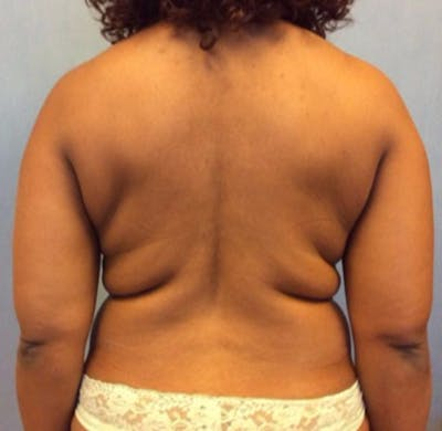 Liposuction Gallery - Patient 13947250 - Image 1