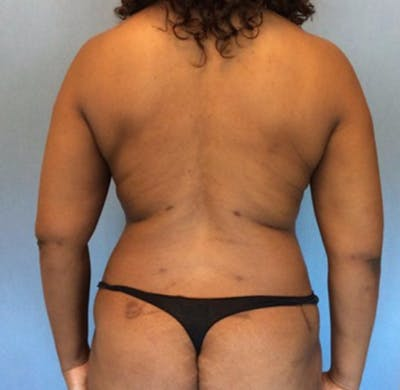 Liposuction Gallery - Patient 13947250 - Image 2