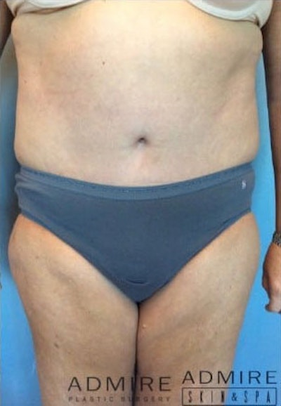 Tummy Tuck Gallery - Patient 10894681 - Image 2