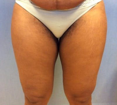 Liposuction Gallery - Patient 13947251 - Image 1