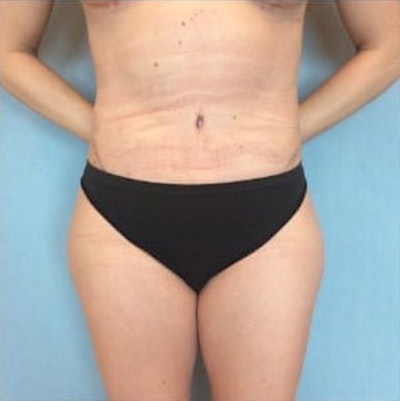 Tummy Tuck Gallery - Patient 10894683 - Image 2