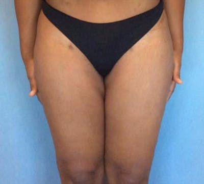 Liposuction Gallery - Patient 13947251 - Image 2