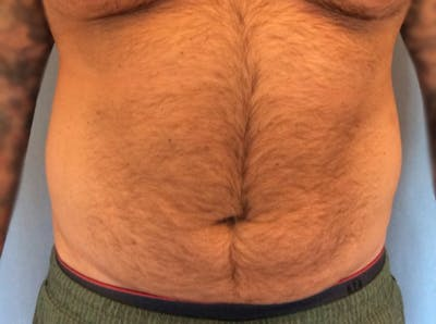 Liposuction Gallery - Patient 13947252 - Image 1