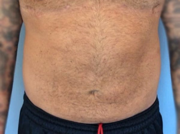 Liposuction Gallery - Patient 13947252 - Image 2