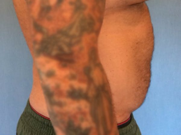 Liposuction Gallery - Patient 13947252 - Image 3