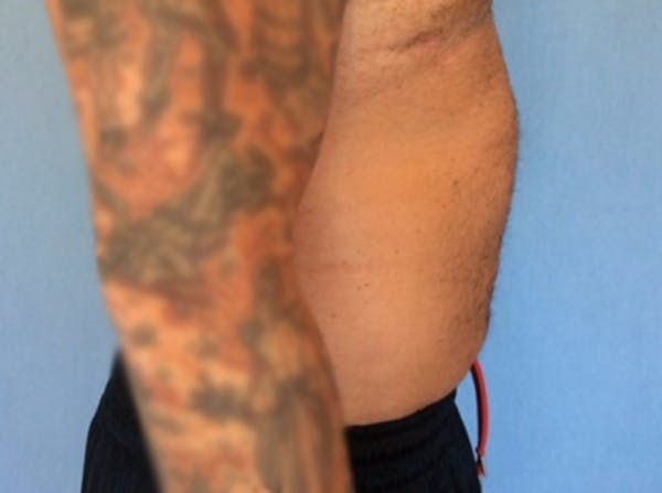 Liposuction Gallery - Patient 13947252 - Image 4