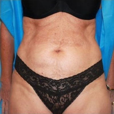 Tummy Tuck Gallery - Patient 10894687 - Image 1