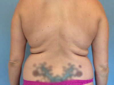 Liposuction Gallery - Patient 13947253 - Image 1