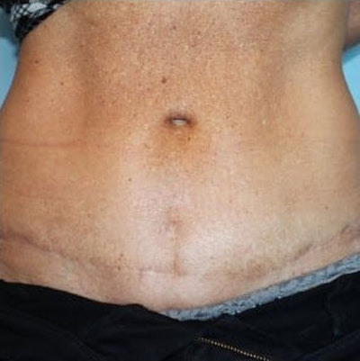 Tummy Tuck Gallery - Patient 10894687 - Image 2