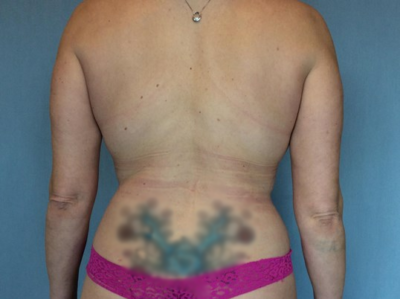 Liposuction Gallery - Patient 13947253 - Image 2