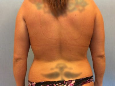 Liposuction Gallery - Patient 13947254 - Image 1