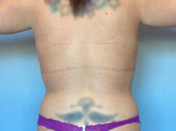 Liposuction Gallery - Patient 13947254 - Image 2