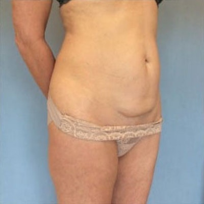 Tummy Tuck Gallery - Patient 10894701 - Image 1