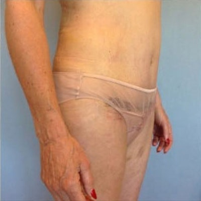 Tummy Tuck Gallery - Patient 10894701 - Image 2