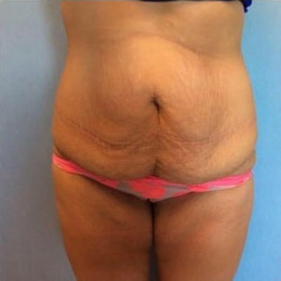 Tummy Tuck Gallery - Patient 10894705 - Image 1