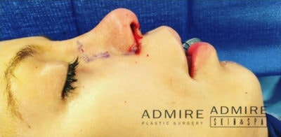 Nose Surgery Gallery - Patient 10894704 - Image 2