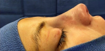 Nose Surgery Gallery - Patient 10894706 - Image 1