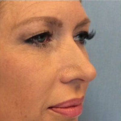 Nose Surgery Gallery - Patient 10894708 - Image 1