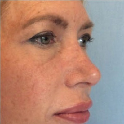 Nose Surgery Gallery - Patient 10894708 - Image 2