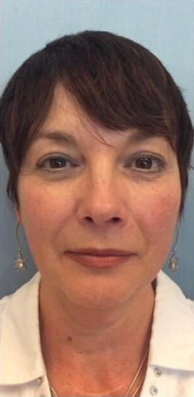 Facial Rejuvenation Gallery - Patient 10894727 - Image 1