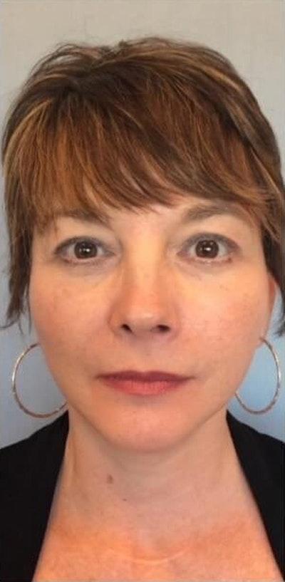 Facial Rejuvenation Gallery - Patient 10894727 - Image 2