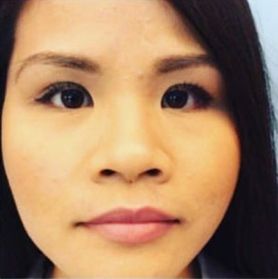 Nose Surgery Gallery - Patient 10894714 - Image 1