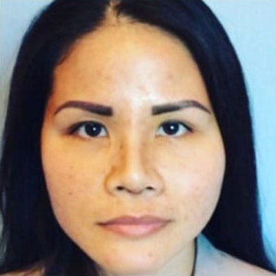 Nose Surgery Gallery - Patient 10894714 - Image 2