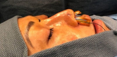Nose Surgery Gallery - Patient 10894717 - Image 1