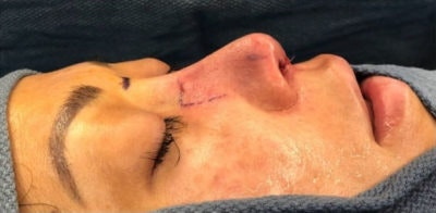 Nose Surgery Gallery - Patient 10894717 - Image 2