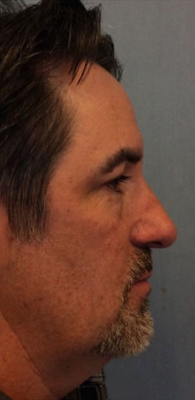 Nose Surgery Gallery - Patient 10894720 - Image 1