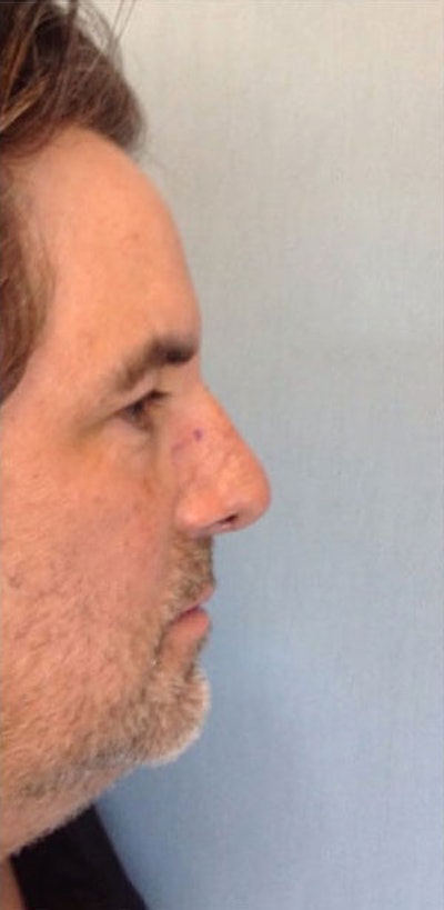 Nose Surgery Gallery - Patient 10894720 - Image 2