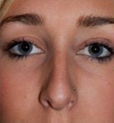 Nose Surgery Gallery - Patient 10894723 - Image 1