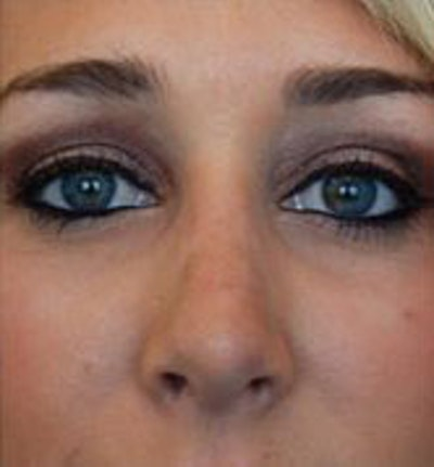 Nose Surgery Gallery - Patient 10894723 - Image 2