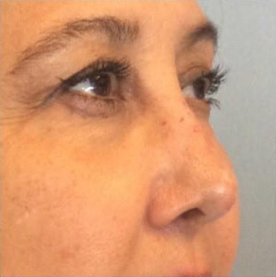 Injectables Gallery - Patient 10894725 - Image 2