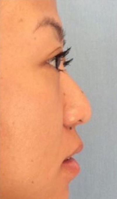 Injectables Gallery - Patient 10894729 - Image 1