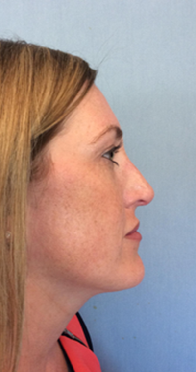 Nose Surgery Gallery - Patient 10894728 - Image 2