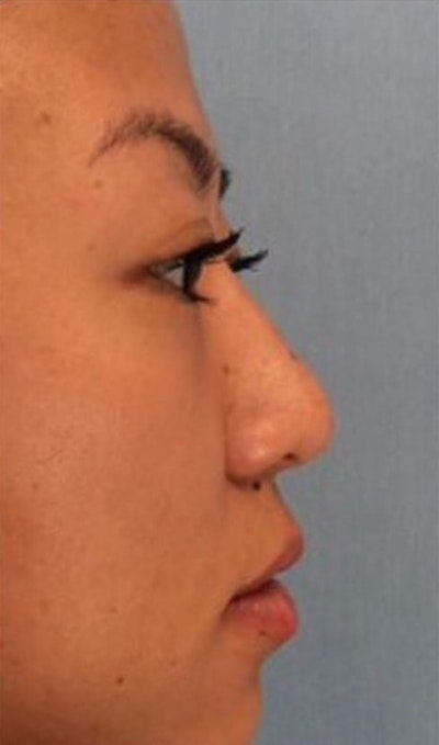 Injectables Gallery - Patient 10894729 - Image 2