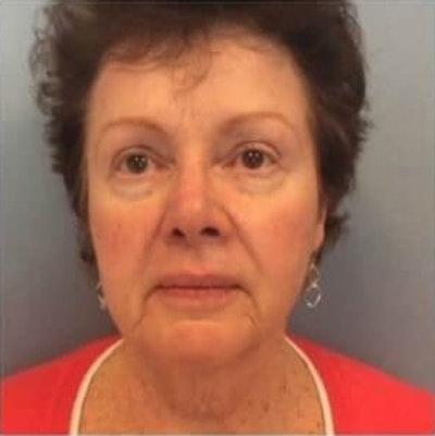 Facial Rejuvenation Gallery - Patient 10894732 - Image 1