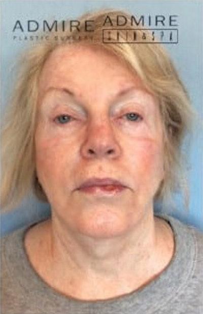 Facial Rejuvenation Gallery - Patient 10894733 - Image 1