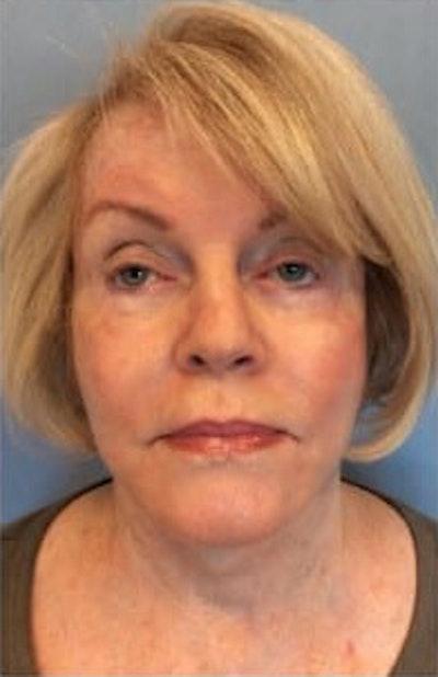 Facial Rejuvenation Gallery - Patient 10894733 - Image 2