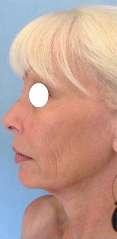 Facial Rejuvenation Gallery - Patient 10894734 - Image 1