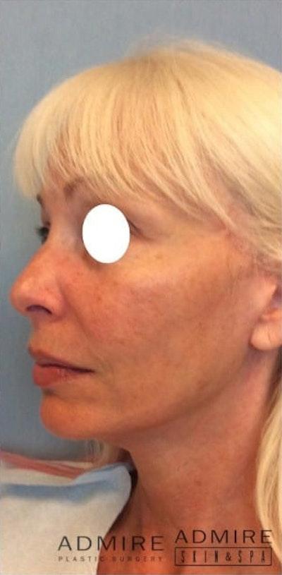 Facial Rejuvenation Gallery - Patient 10894734 - Image 2