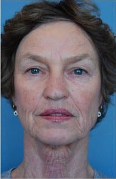 Facial Rejuvenation Gallery - Patient 10894735 - Image 1