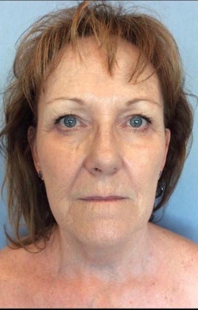 Facial Rejuvenation Gallery - Patient 10894736 - Image 1