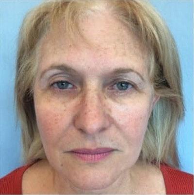 Facial Rejuvenation Gallery - Patient 10894737 - Image 1