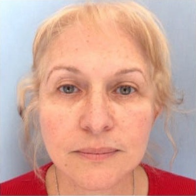 Facial Rejuvenation Gallery - Patient 10894737 - Image 2