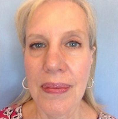 Facial Rejuvenation Gallery - Patient 10894738 - Image 1
