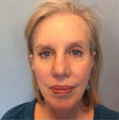 Facial Rejuvenation Gallery - Patient 10894738 - Image 2